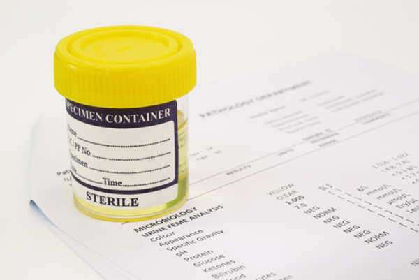 Understanding Urine Tests for BAC